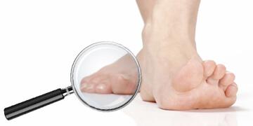 Nagelpilz Füße Stinken Hausmittel