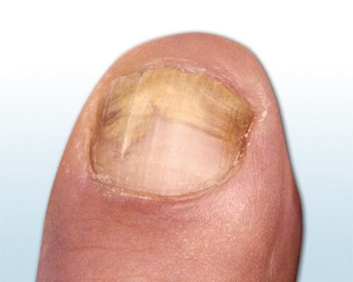 Die Tinkturen gegen gribka der Nägel der Hände