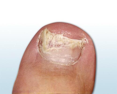 Nagelpilz? - Ursachen Bilder Und Tipps Zur Behandlung